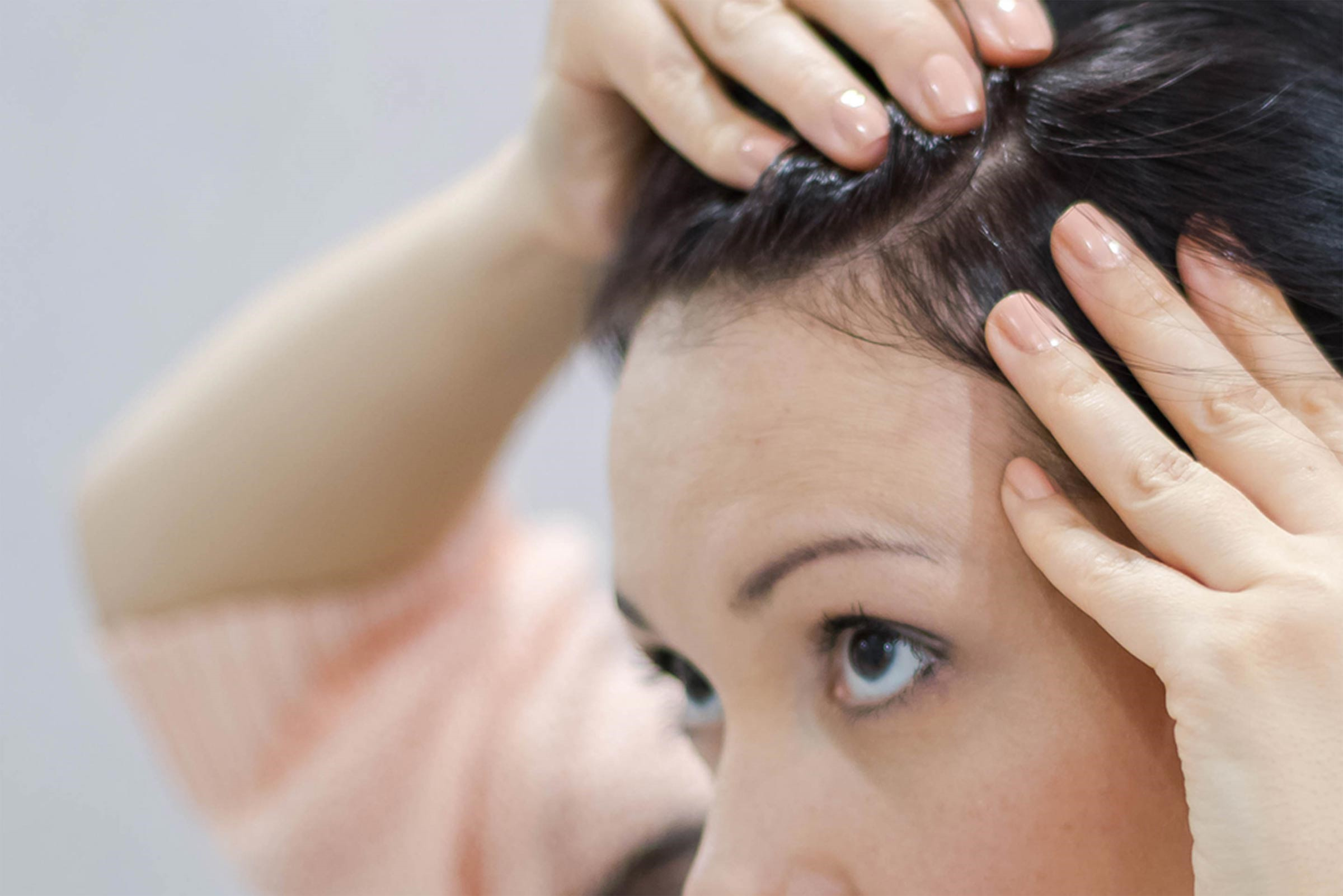 Itchy Scalp And Hair Loss At Female